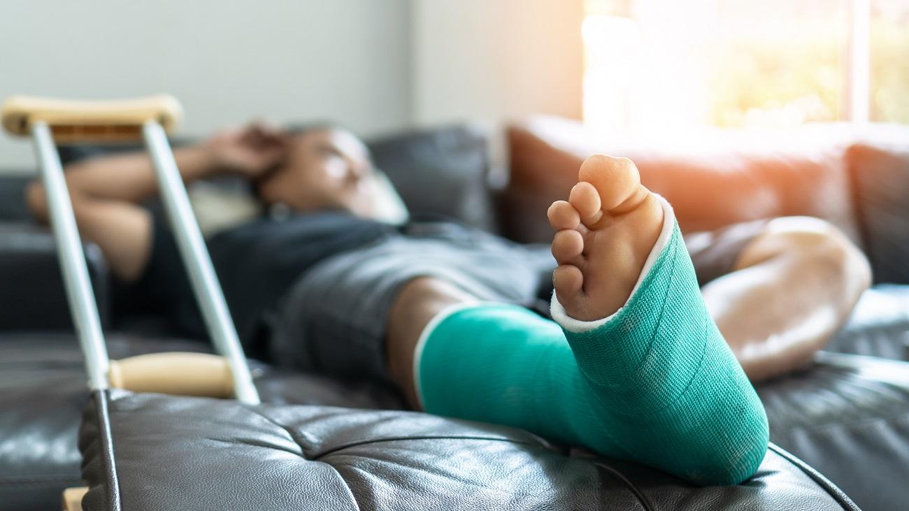 Gips bein gebrochen Knochenbruch beim